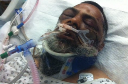 Mohamed Rasheed Khan in hospital gown on white hospital bed, with pink and blue tubes attached to his face