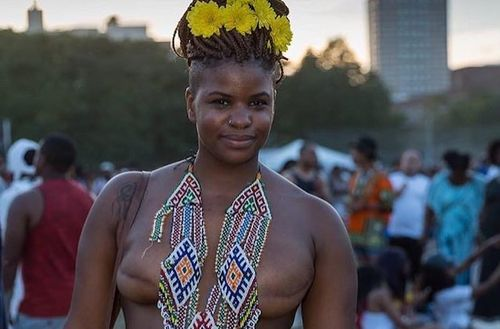 Black woman with yellow flowers in her hair, a beaded necklace and two mastectomy scars